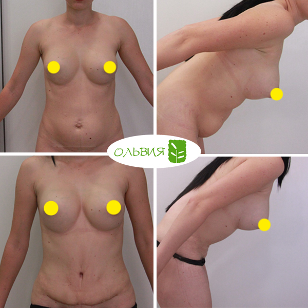Абдоминопластика, грудь импланты NAGOR круглые 390гр, спустя 2 недели