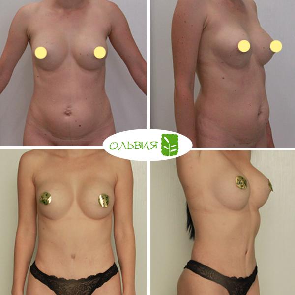 Абдоминопластика, грудь импланты NAGOR круглые 390гр, спустя 3,5 месяца
