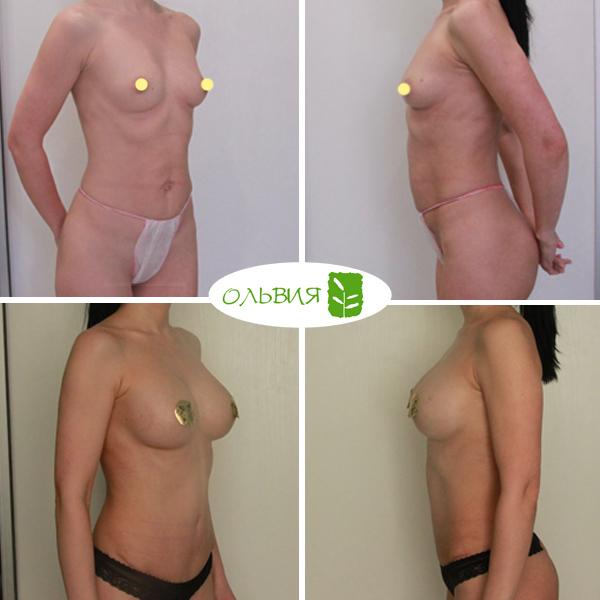 Абдоминопластика, импланты 335гр анатомия, спустя 3 месяца