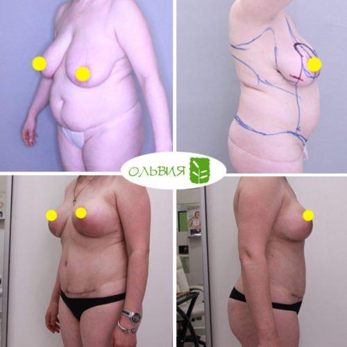 Абдоминопластика, липосакция живота, спины, поясницы, подмышек, кресца, редукция груди
