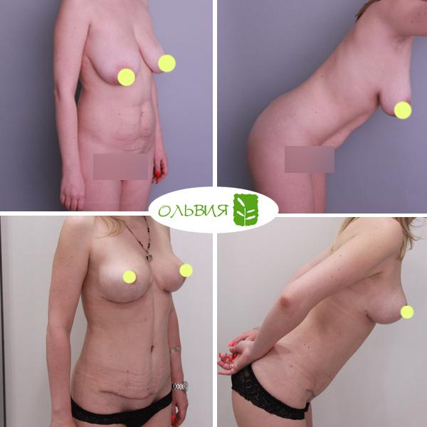 Абдоминопластика, редукция груди, липосакция живота, поясницы, спустя 1 месяц