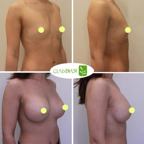 Эндоскопическое увеличение груди, Nagor 335гр, спустя 2 месяца