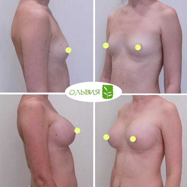 Эндоскопическое увеличение груди, SEBBIN 370гр, анатомия