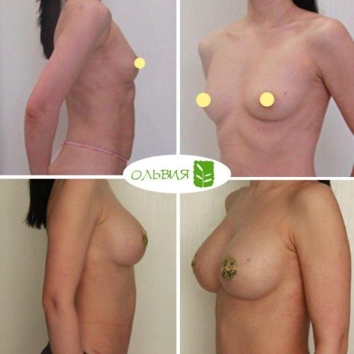 Эндоскопическое увеличение груди, импланты 335гр анатомия, спустя 3 месяца