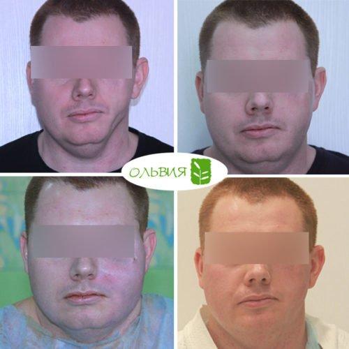 Липофилинг левой щеки, спустя 3 недели