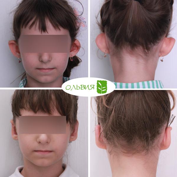 Отопластика с реконструкцией левого уха, спустя 1 неделя