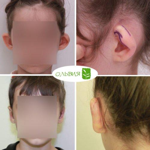 Отопластика с реконструкцией левого уха, спустя 3 дня