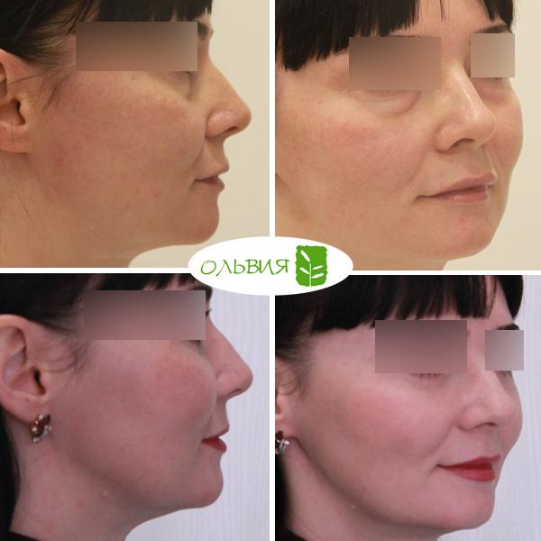 Подтяжка средней зоны лица, блефаропластика нижних век, спустя 1 месяц