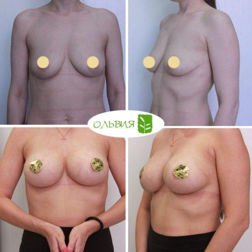 Редукция груди, импланты 375гр и 335гр, спустя 9 месяцев