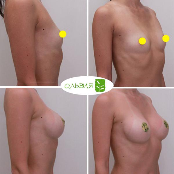 Увеличение груди, Nagor 335гр, спустя 1 месяц
