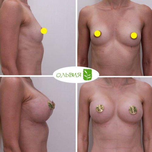 Увеличение груди, Nagor 375гр, спустя 2 недели