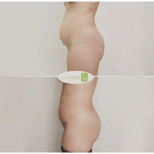 Абдоминопластика, спустя 2 месяца
