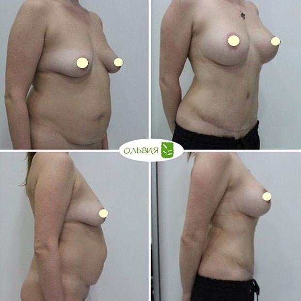 Абдоминопластика, липосакция живота, поясница, подтяжка груди с имплантами