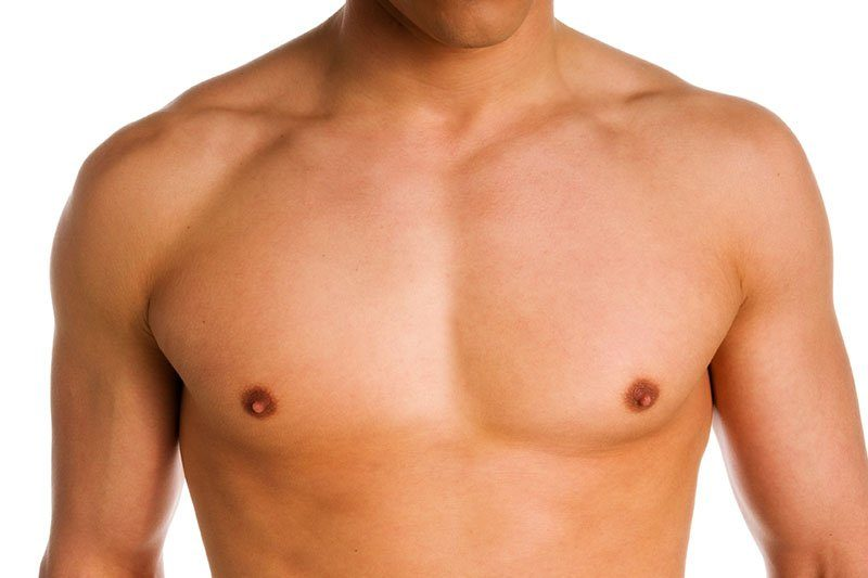 Мастэктомия при гинекомастии у мужчин (Обе груди)