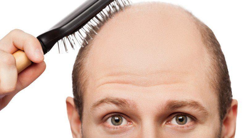 Пересадка волос при облысении