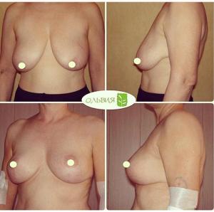 Подтяжка груди с имплантантами