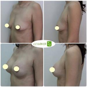 Периареоральная подтяжка груди с удалением кист, анатомические импланты 290гр, спустя 3 недели после операции