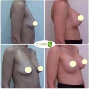Периареолярная подтяжка, импланты 325гр, спустя 3 месяца