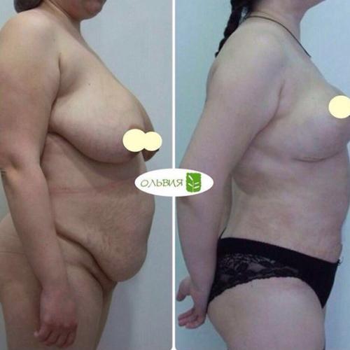 Абдоминопластика, подтяжка груди, липосакция поясницы
