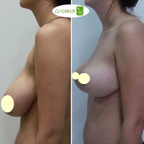 Редукция груди,спустя 3 месяца