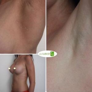 Эндоскопическое увеличение груди (швы спустя 6 и 10 месяцев)