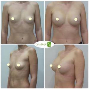 Эндоскопический доступ, анатомические импланты 345 гр