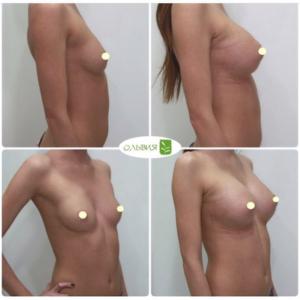 Эндоскопический доступ, анатомические импланты 375гр