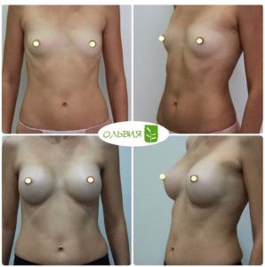 Эндоскопическое увеличение груди, анатомические импланты, 295гр