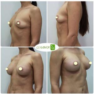 Увеличение груди эндоскопическим способом, анатомические импланты 320гр, 2 недели после операции