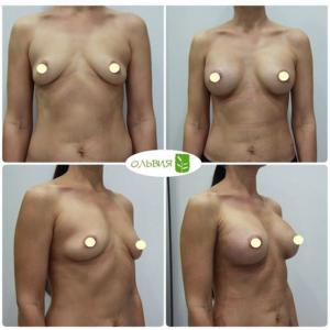 Эндоскопическое увеличение, круглые импланты 295гр, спустя 1 неделю