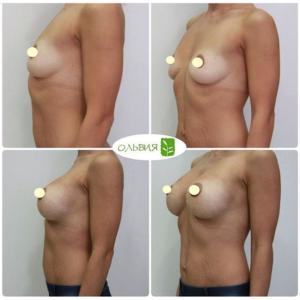 Эндоскопический доступ, анатомические импланты 320 гр, через 2 недели после операции