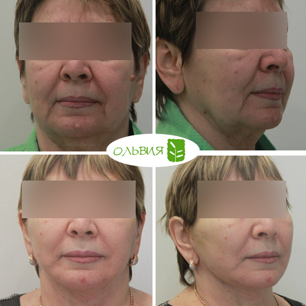 Подтяжка 23 лица, липосакция шеи, верхняя и нижняя блефаропластика