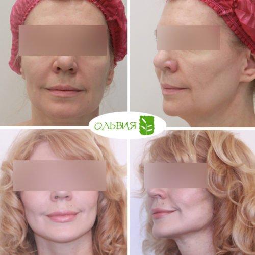 Подтяжка лица, нижняя и верхняя блефаропластика, спустя 1 месяц