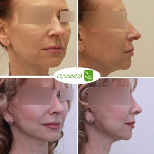 Подтяжка нижней две трети лица и шеи, нижняя блефаропластика, ринопластика, липофилинг шеи , спустя 1 месяц