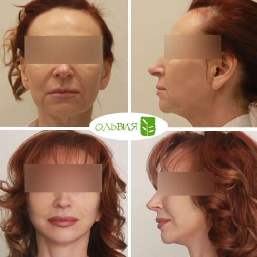 Подтяжка нижней две трети лица и шеи, нижняя блефаропластика, ринопластика, липофилинг шеи , спустя 2 недели