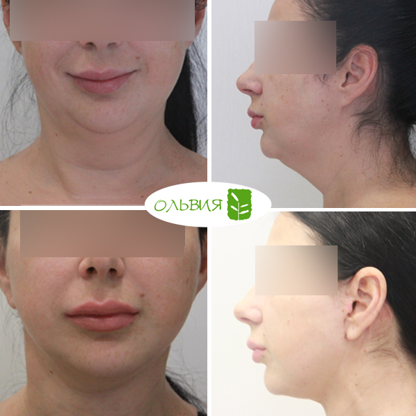 Подтяжка нижней две трети лица, липосакция шеи, спустя 2 недели