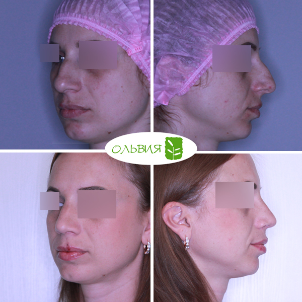 Ринопластика, понижение спинки носа, сужение и укорочение кончика, спустя 1 месяц