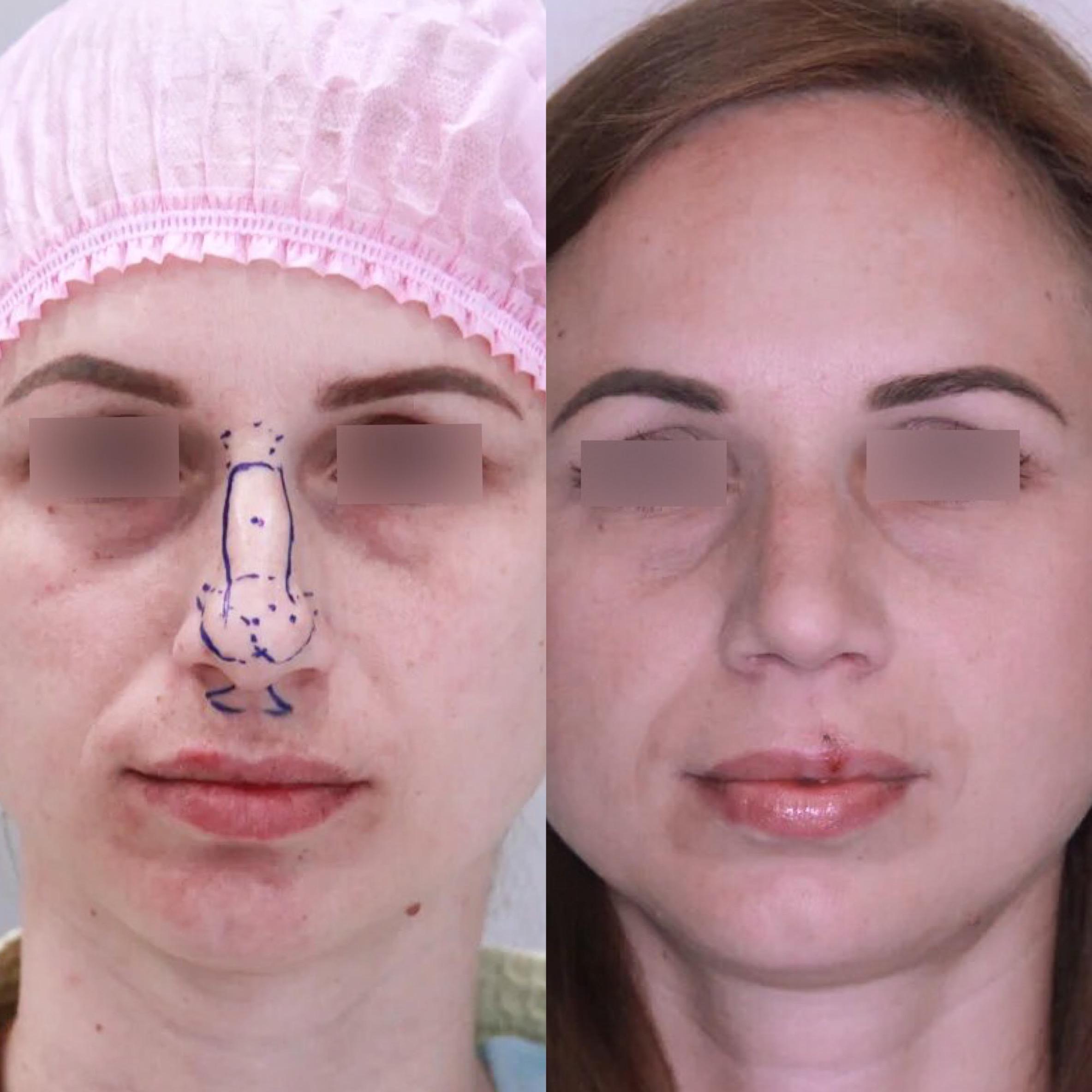 Ринопластика, спустя 3 месяца