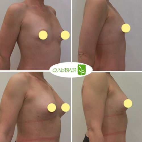 Коррекция ареол, липофилинг груди, липосакция галифе, колен, внутр. пов. бедер, пупочная грыжа, спустя 1,5 месяца