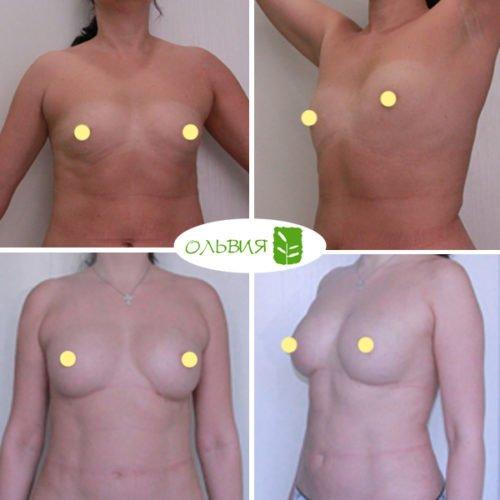 Липофилинг груди, фото спустя 1 месяц