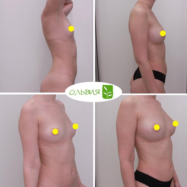 Липофилинг груди, липосакция галифе, внутренней стороны бедра, фото спустя 1 месяц