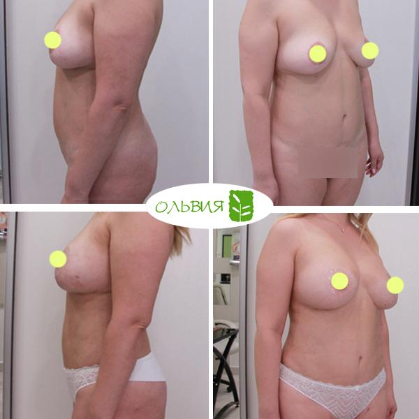 Липофилинг груди, липосакция галифе, ягодиц, колен, галифе, внутр. пов. бедра