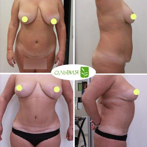 Подтяжка груди, абдоминопластика, липосакция живота, поясницы, лобка, спустя 2 месяца.