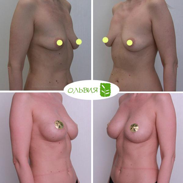 Подтяжка груди с импланами Sebbin 325гр, спустя 1 год