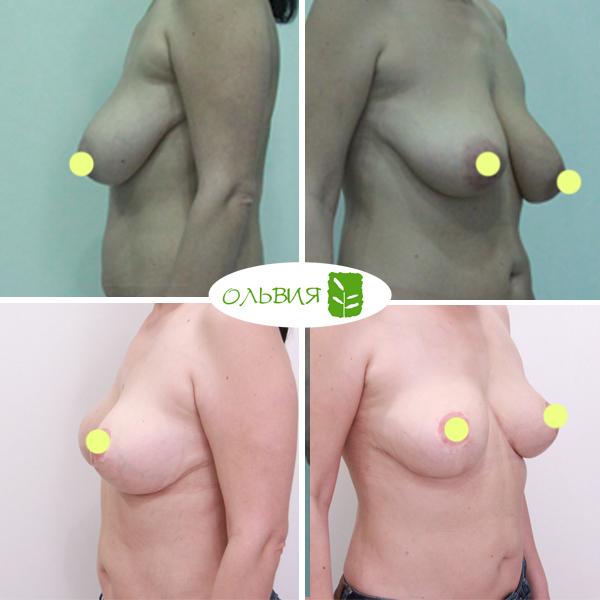 Подтяжка груди, спустя 1 месяц