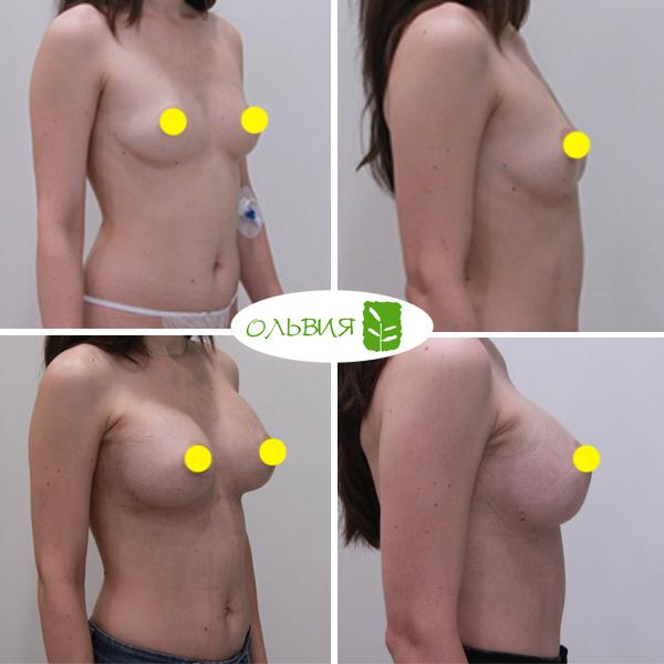 Увеличение груди, Sebbin 325гр, спустя 1 месяц