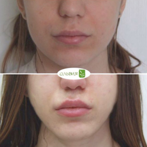 Подтяжка верхней губы, спустя 1 месяц