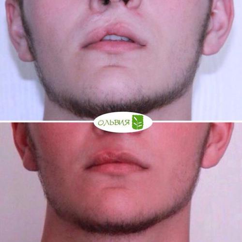 Исправление дефекта верхней губы, коррекция шрама, спустя 1 месяц