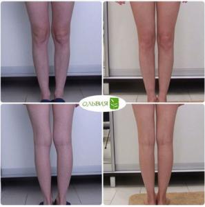 Липофилинг голеней, фото спустя 3 недели