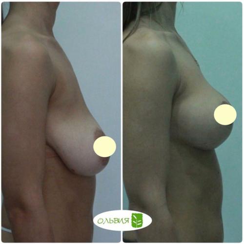 Подтяжка и липофилинг груди, фото спустя 3 месяца